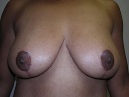 M02-breast-lift-front-after