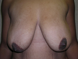 M02-breast-lift-front-before