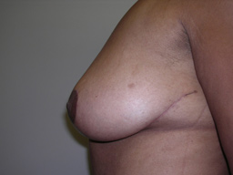 M02-breast-lift-sideright-after