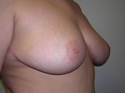 r02-breast-reduction-angle-after