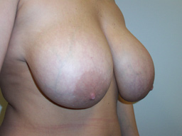 r02-breast-reduction-angle-before