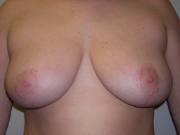 r02-breast-reduction-front-after