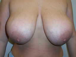 r02-breast-reduction-front-before