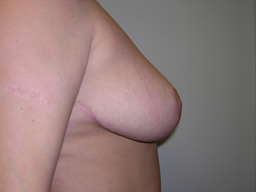 r02-breast-reduction-side-after