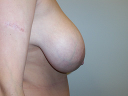 r02-breast-reduction-side-before