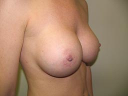 r03-breast-revision-angle-after