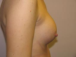 r03-breast-revision-left-before