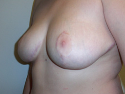 r07-breast-reduction-angle-after