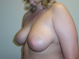 r07-breast-reduction-angle-before
