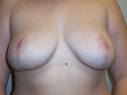 r07-breast-reduction-front-after