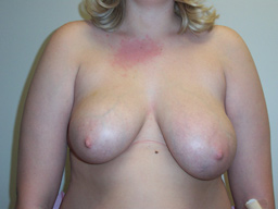 r07-breast-reduction-front-before