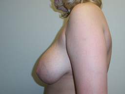 r07-breast-reduction-side-before