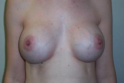 r07-breast-revision-front-after