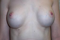 r07-breast-revision-front-before