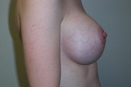 r07-breast-revision-left-after