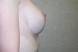r07-breast-revision-left-before