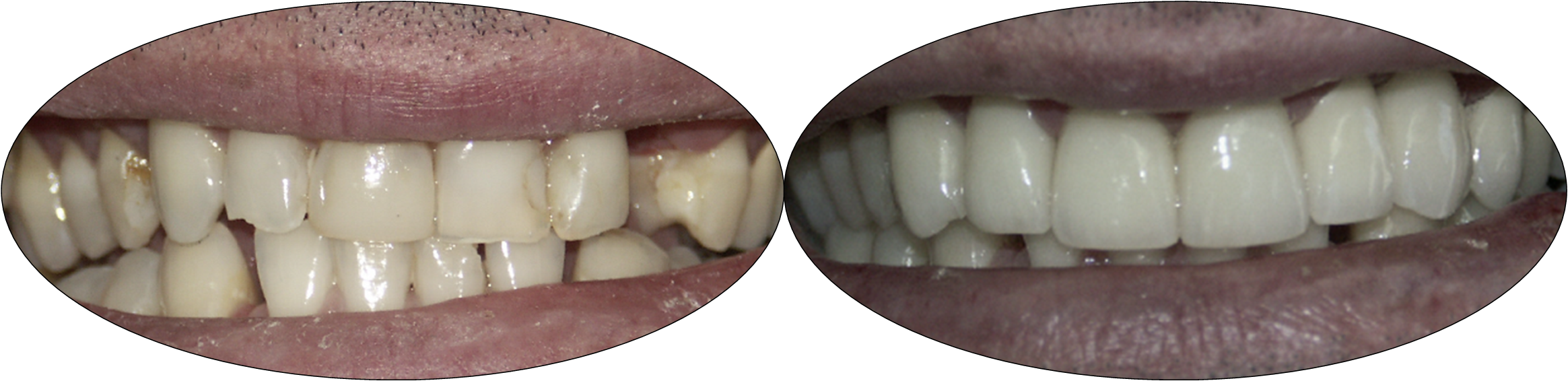 Before and after smile photos of patient with porcelain crowns