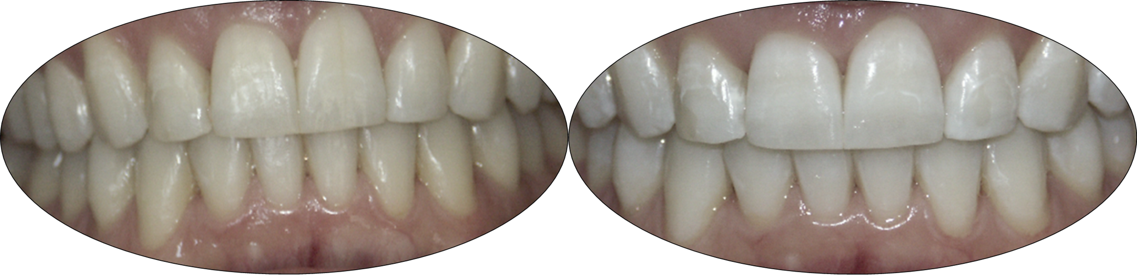 Before and after images of Zoom teeth whitening patient