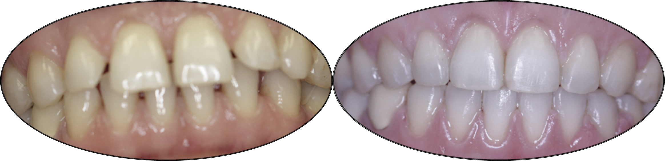 Smile gallery images, before and after orthodontics, patient four