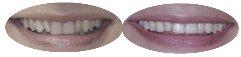 Before and after images of orthodontics patient