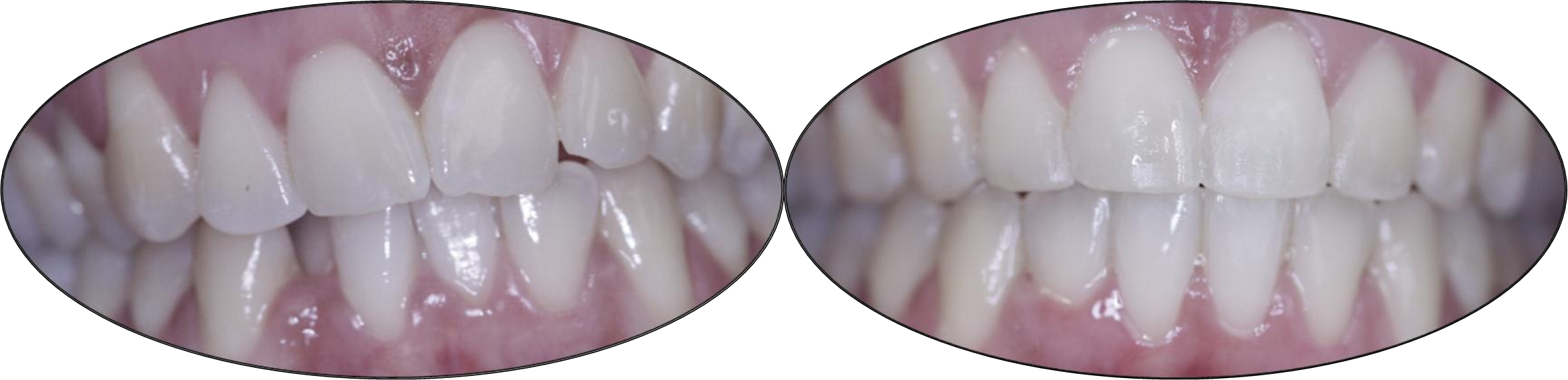 Smile gallery images, before and after orthodontics, patient two