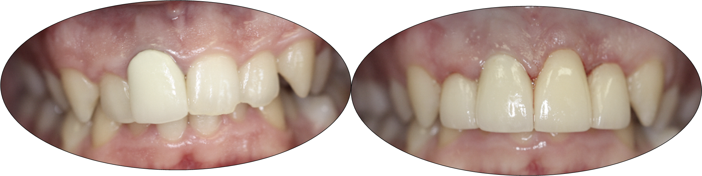 Before and after images of Crown Lengthening, Crowns and Laminates