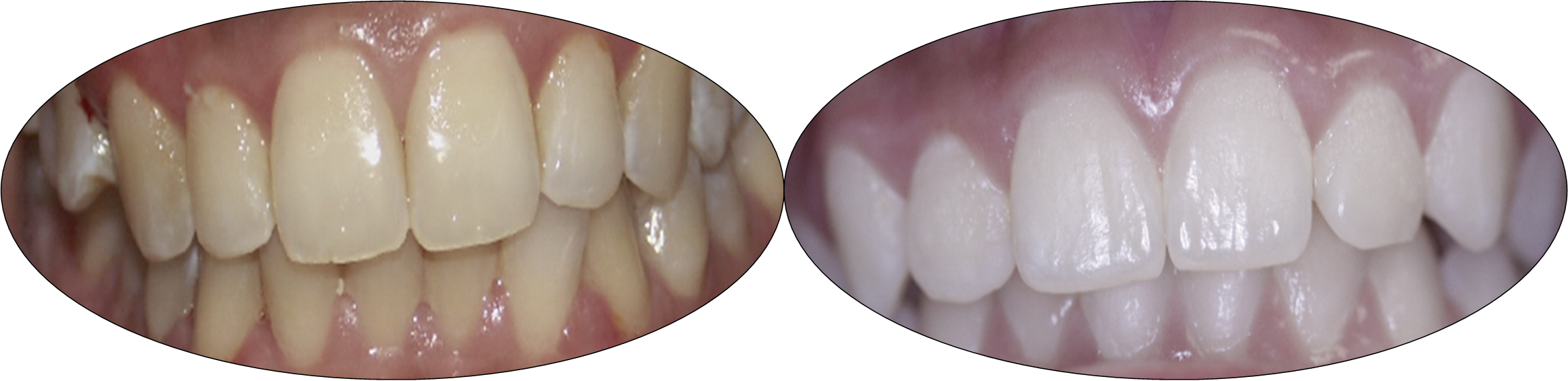 Smile gallery images, before and after Invisalign, patient three
