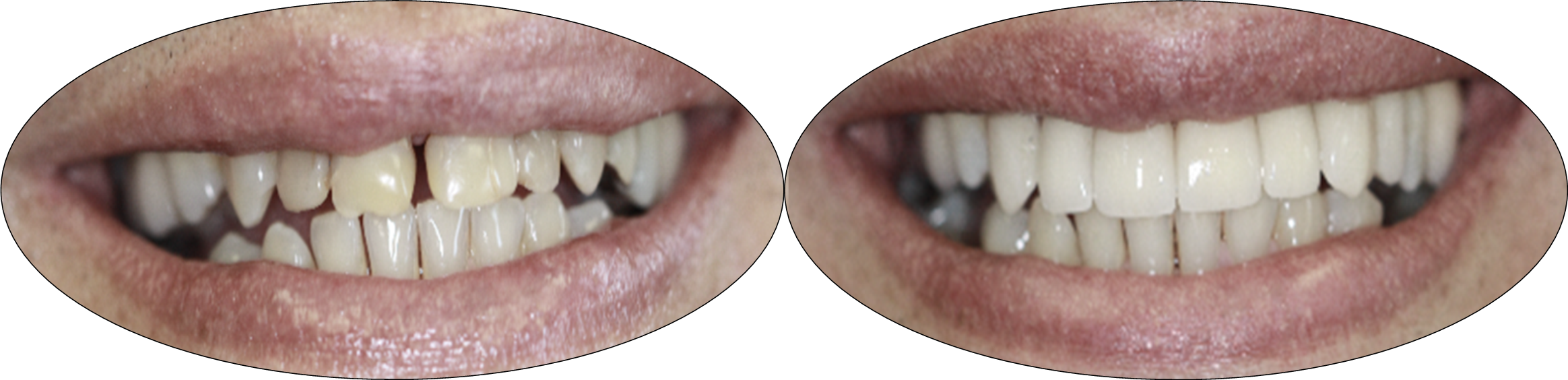 Before and after images of Porcelain Crowns and Porcelain Veneers