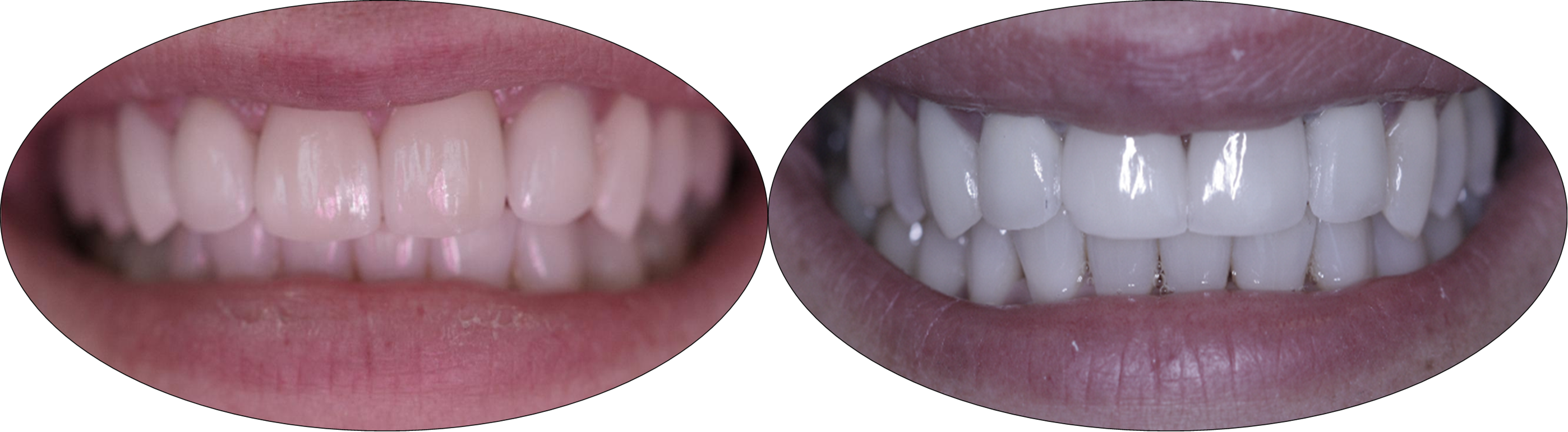 Before and after pictures of patient with porcelain veneers and crowns