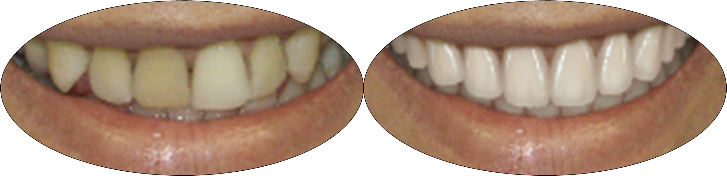 Before and after smile photos of patient with porcelain veneers