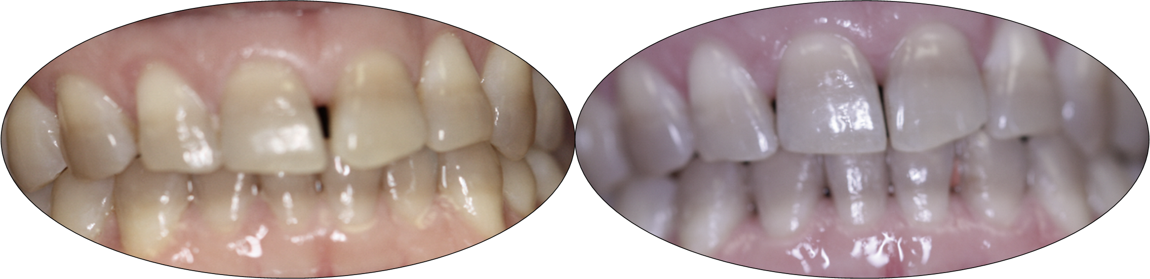 Smile gallery images, before and after Invisalign, patient two