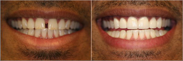 Porcelain Veneers provided by Dr. Lim to treat a spacing in the teeth