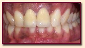 watters creek dental teeth